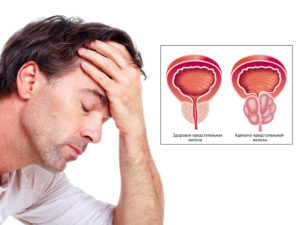adenoma-prostatyi