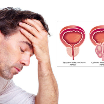 Как я вылечил опухоль аденомы простаты, гипертонию, аллергию