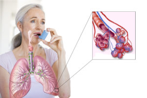 astma12