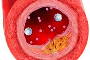 Aterosklerotic