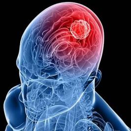 Глиома – профилактика и лечение доброкачественной опухоли
