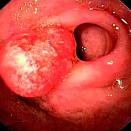 Раковая опухоль: причины, проявления и виды карцином
