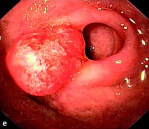 karcinoma