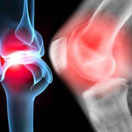 Заболевания суставов ног