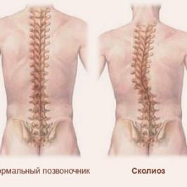 Сколиоз: основные признаки, симптомы и методы лечения болезни