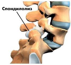 Спондилолиз: сущность, причины и способы лечения