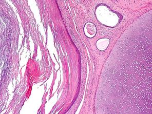 Тератома – особенности опухоли и методы ее устранения