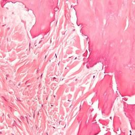 Фиброма – симптомы, причины и способы лечения