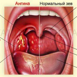 Что делать, когда часто болею ангиной?
