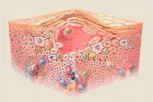 Гомеопатия: лечение экземы