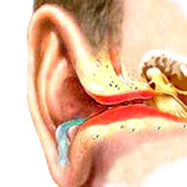Экзема в ушах