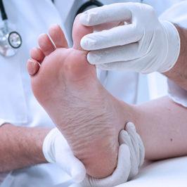 Экзема на ногах лечение