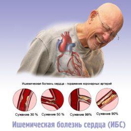 Ишемия сердца – симптомы и причины