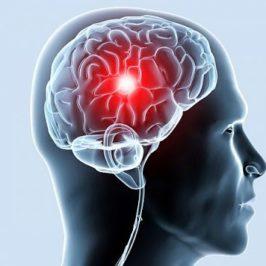 Ишемия мозга – симптомы и причины