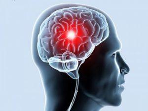 ishemija-golovnogo-mozga