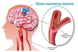 ishemija-mozge