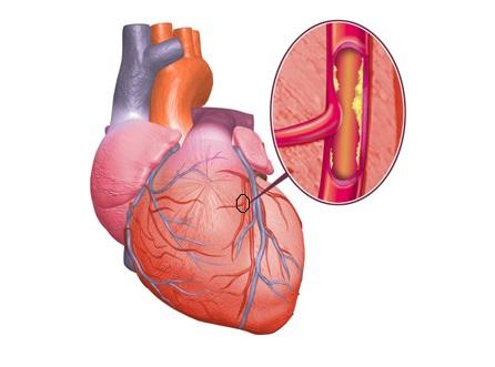 Основные признаки ишемии сердца