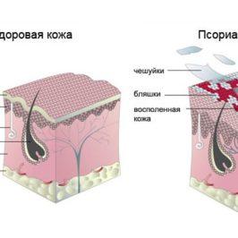 Каплевидный псориаз