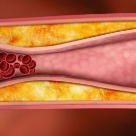 Холестериновые бляшки рассасываются с помощью дыхания на тренажере «Третье дыхание»
