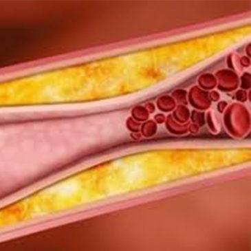 Лечение атеросклероза с помощью тренажера Фролова ТДИ-01 «Третье дыхание»
