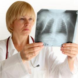 Профилактика бронхита. Как лечить бронхит с помощью ТДИ-01 «Третье дыхание»