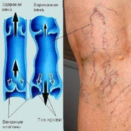 Лечение варикозного расширения вен – обзор методов