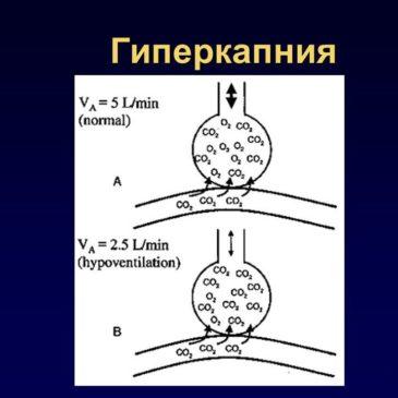 Тренажер Фролова в борьбе с гиперкапнией!