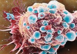 Процедуры ингаляции при лечении рака легких