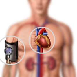 Часть 3: Причины заболеваний сердечно-сосудистой системы