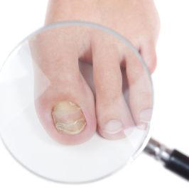 Часть 6: Лечение грибковых поражений ногтей и кожи с помощью ТДИ-01
